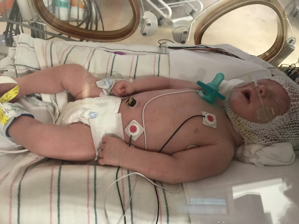 Baby Hunter's Infantile Spasms Story | Mickie's Miracles